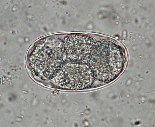 Tricocefaloză - Wikipedia Parazitologie hookworm - Parazitologie hookworm